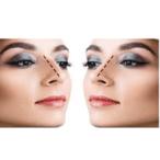 Rhinoplasty- Nose Surgery Nashik